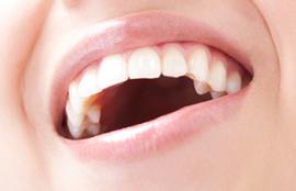 恵比寿の歯科医院タカラデンタルクリニックでインプラント