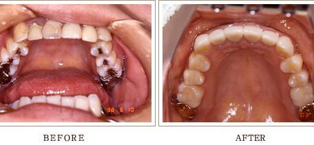 綺麗で健康な歯にするなら恵比寿ガーデンプレイスの歯医者